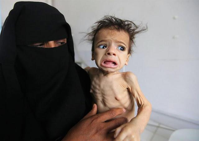 ΟΗΕ: Ένα βήμα πριν τον λιμό πάνω από 8 εκατομμύρια άνθρωποι στην Υεμένη