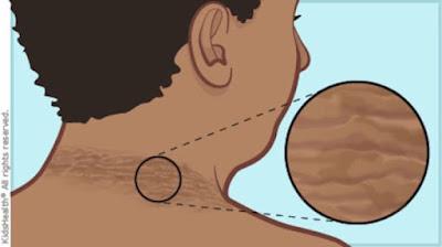Tratamiento para cuello oscuro