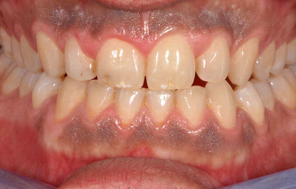 melanosis-gingival