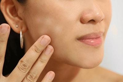Penyebab Bercak Putih di Wajah dan Cara Mengatasinya