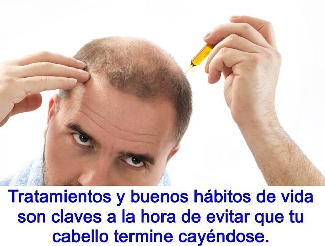 Es mejor prevenir la alopecia desde edades tempranas que tener que luchar una vez se manifieste