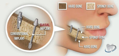 http://dentalimplantsindia.org/conventional-implants-vs-basal-implants/