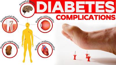 Diabetes: Beberapa Fakta Tentangnya
