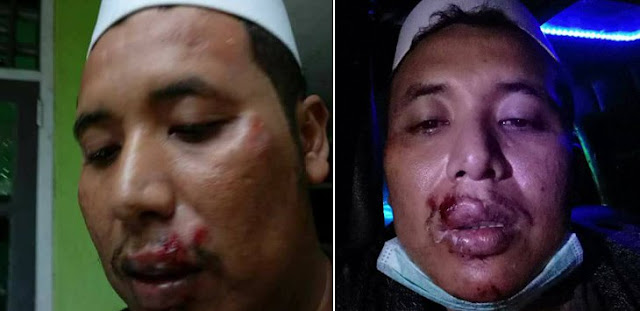 Ketua FPI Dipukuli Usai Ceramah PKI, Bibirnya Bonyok