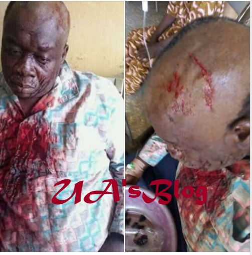 Thugs Break Head of Former APC Chairman For Defecting To Another Party (Photo)