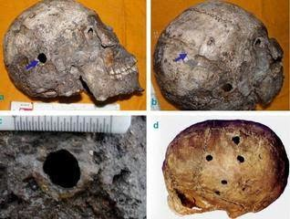 The Evidence of First Ever Brain surgery from Harappa in Ancient Medical Science