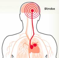 Obat Stroke Alami, Ampuh Menyembuhkan Stroke dg Aman Tanpa Efek Samping