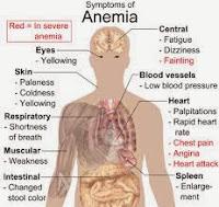 Obat Herbal Mengobati Hernia