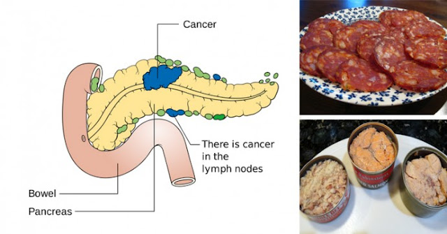 Here are the following Foods Causing Cancer You Should Have to Be Aware Of!