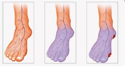 Mauvaise circulation sanguine, mains et jambes froides? Voici ce que vous pouvez faire pour résoudre ce problème
