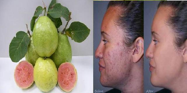Pengobatan penyakit kulit memakai daun Jambu Biji
