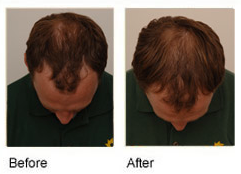 Procerin before and after picture
