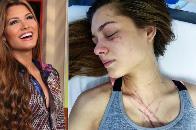 Mira como quedó Osmariel Villalobos tras el ataque de Diosa Canales