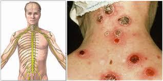 Komplikasi Penyakit Sipilis