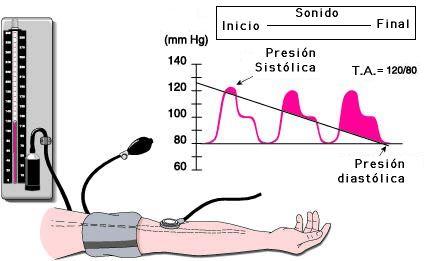 Presión arterial diastólica alta con pulso bajo