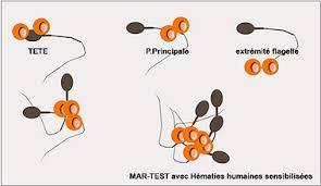 aglutinasi positif sperma