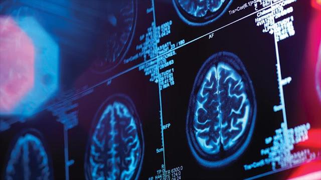 Nuevo estudio revela: Nuestro cerebro puede predecir el futuro