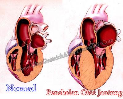 Cara Mengobati Penebalan Otot Jantung Secara Alami