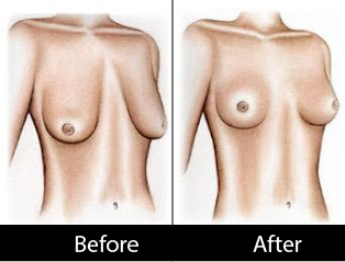 breast-lift-before-after