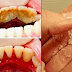 Easy, Simple and Inexpensive Treatment to Get rid of Terrible Tartar, Bad Breath and Plaque