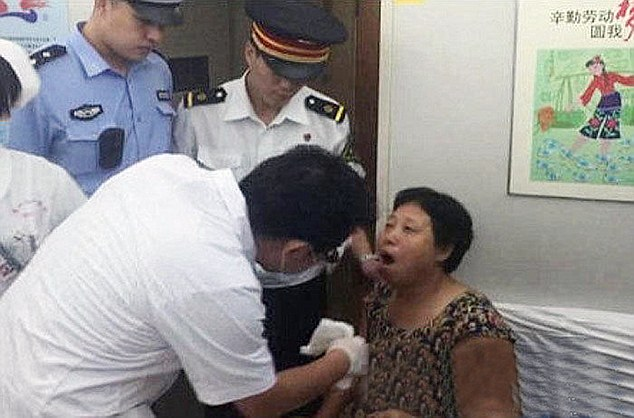 Chinese Woman Laughed Too Much And Dislocated Her Jaw