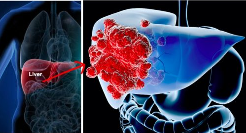 6 Signs Of Liver Cancer Is Growing In Your Body