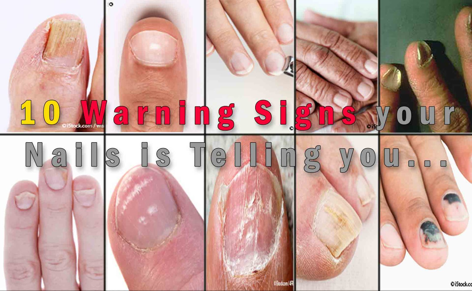 ATTENTION: DO NOT IGNORE THESE WARNING SIGNS THAT YOUR NAILS ARE ...