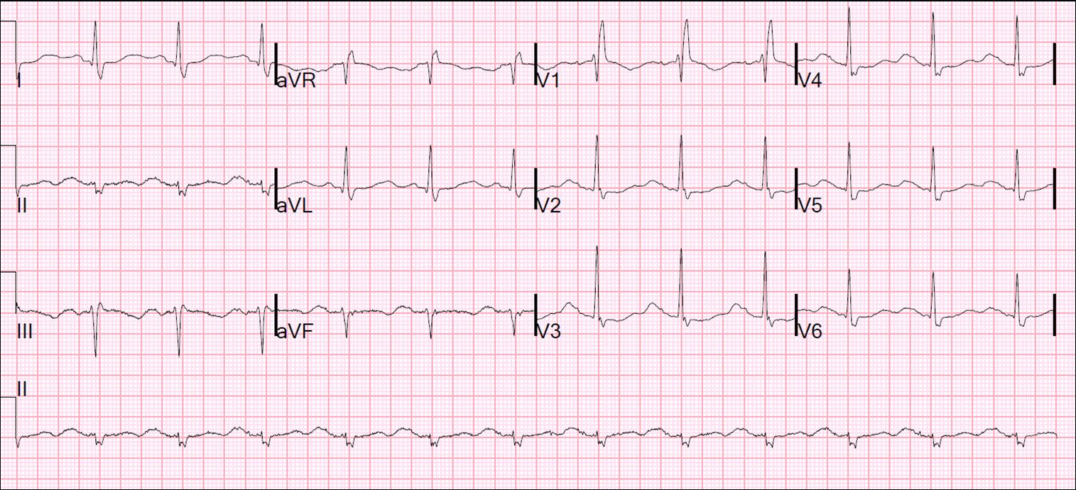 Dr  Smith's ECG Blog: Polymorphic Ventricular Tachycardia