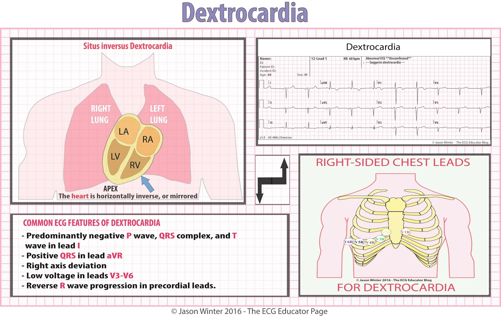 ecg study card for dextrocardia [ 1600 x 1009 Pixel ]