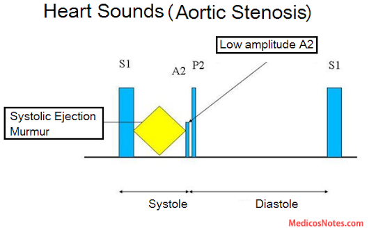 Heart Sounds And Murmur In Aortic Stenosis Brief Description Of S1
