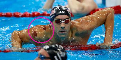 Popularitas Bekam di Olimpiade