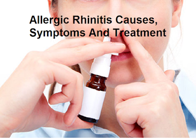 Rhinitis means inflammation of the nasal mucosa Allergic Rhinitis Causes, Symptoms And Treatment