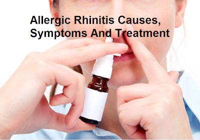 allergic rhinitis causes, symptoms and treatment