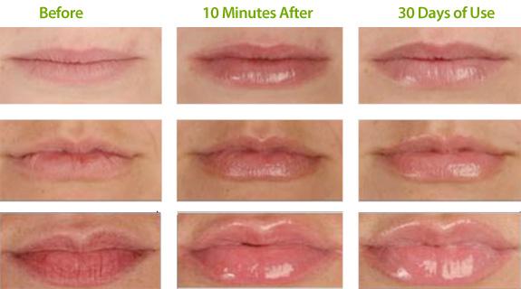 100+ Permalip Implants Types Of Lips – yasminroohi