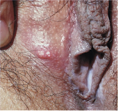 Atypical molluscum contagiosum, with loss of superficial epithelium and presenting as a nodular vulvar ulcer.