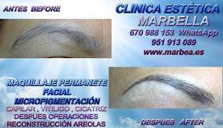 MICROPIGMENTACIÓN en ALMERIA  Te proponemos la alta calidad de servicios, con los destacados especialistas en micropigmentación y maquillaje permanente Marbella y ALMERIA
