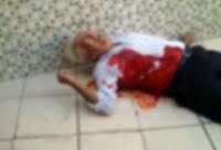 Nicanor não resiste e morre no hospital após ser baleado na creche Almir do Picolé