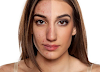 5 Natural Products to Get Rid of Acne Scars