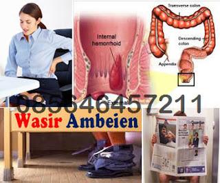 Harga Salep dan AMBEJOSS Obat Herbal Wasir