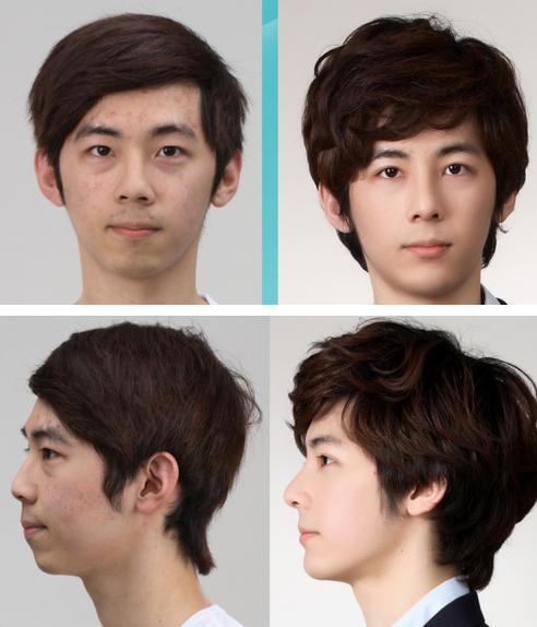 Plastic Surgery changes