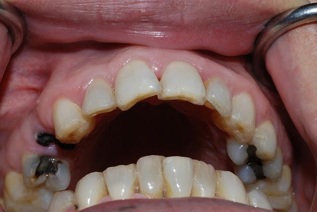 Răng hàm bị sâu nặng nên trám hay nhổ?