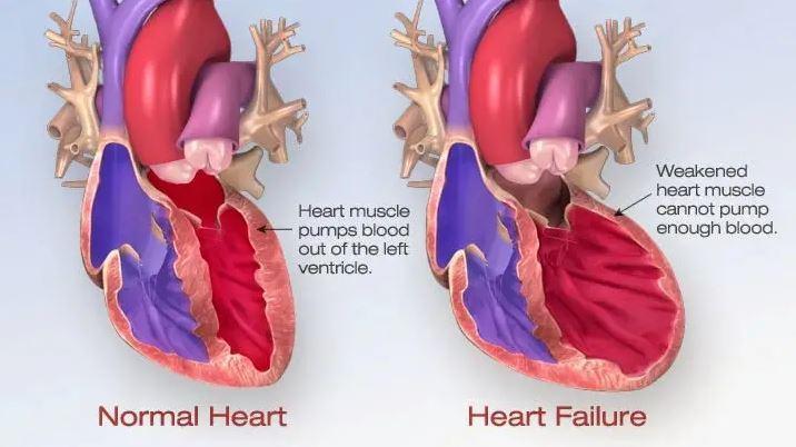 Laporan Pendahuluan Askep Gagal Jantung Kongestif (GJK) / Congestive Heart Failure (CHF)