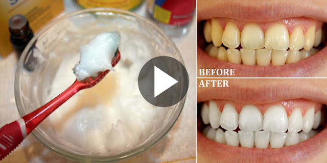 How To Whiten Your Yellow Teeth In 1 Minute At Home