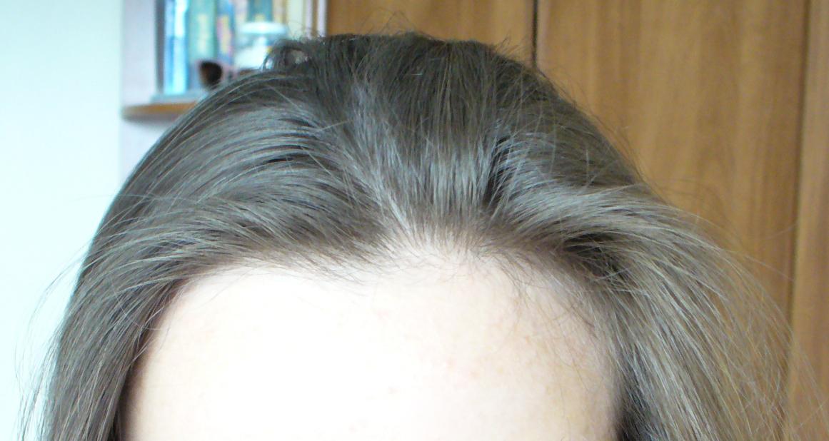 wypadanie włosów zakola