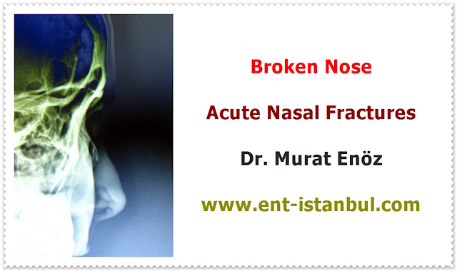 Nasal fracture definition - Broken nose - Nasal fracture symptoms - Nasal fracture diagnosis - Nasal fracture treatment - Nasal fracture reduction - Treatment for a broken nose - The treatment of nasal fractures - Open nasal fracture repair - Post-operative instructions for reduction nasal fracture