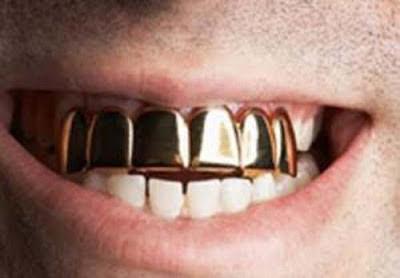 Gigi emas