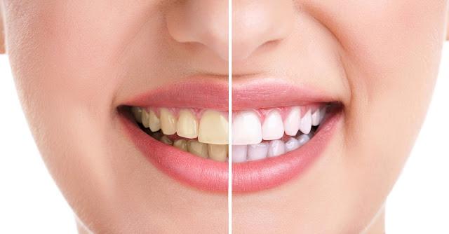 jamnagar teeth whitening