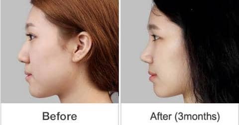 Coba Deh Kalian Tekan Hidung Selama 10 Menit dan Rasakan Efek Menakjubkan