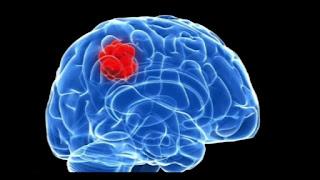 Cara Untuk Mengesan Kanser Otak