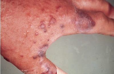 Erysipeloid. An infection of the hands caused by Erysipelothrix rhusiopathiae characterized by blue-red patches of the skin.